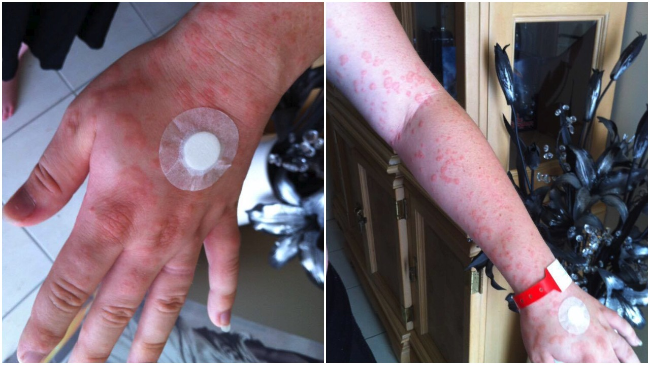 Pregnant mum's rash covered her whole body: 'The pain and the itch