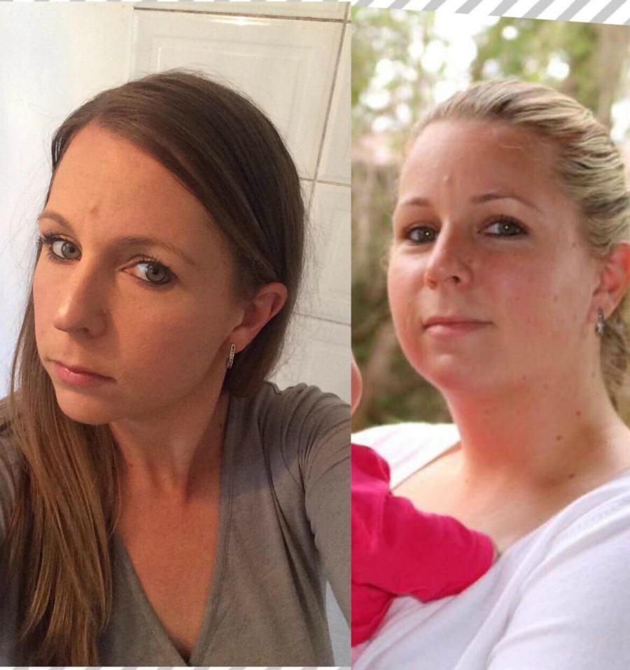 Andrea Hutton face transformation